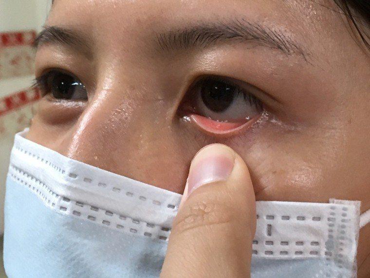 成大醫院雲林斗六分院血液腫瘤科醫師顏志傑表示,民眾可自我檢查眼瞼,若無血色,呈現...
