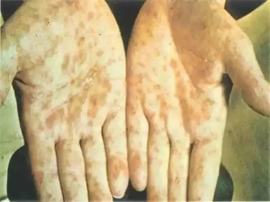 劉姓老翁手掌和腳掌出現很厚的痂皮,部分脫落甚至糜爛,竟是梅毒所致。