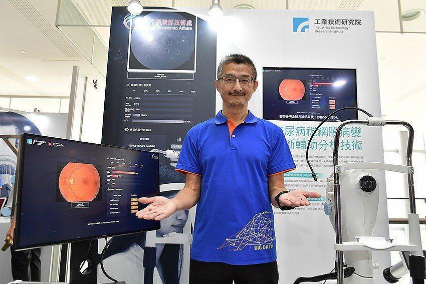 工研院巨資中心主任馮文生發表工研院開發的「糖尿病視網膜病變診斷輔助分析技術」,可...