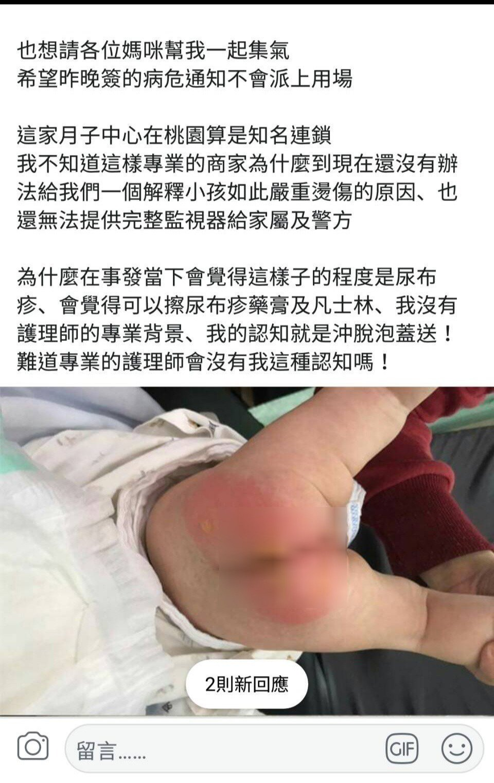 桃園市蘆竹一名1個半月大女嬰在坐月子中心,警傳疑似遭虐屁股紅腫嚴重送醫急救,女嬰...