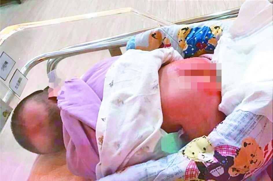 桃園蘆竹一名1個半月大女嬰在產後護理之家,疑似遭虐屁股紅腫嚴重送醫急救。 圖/翻...