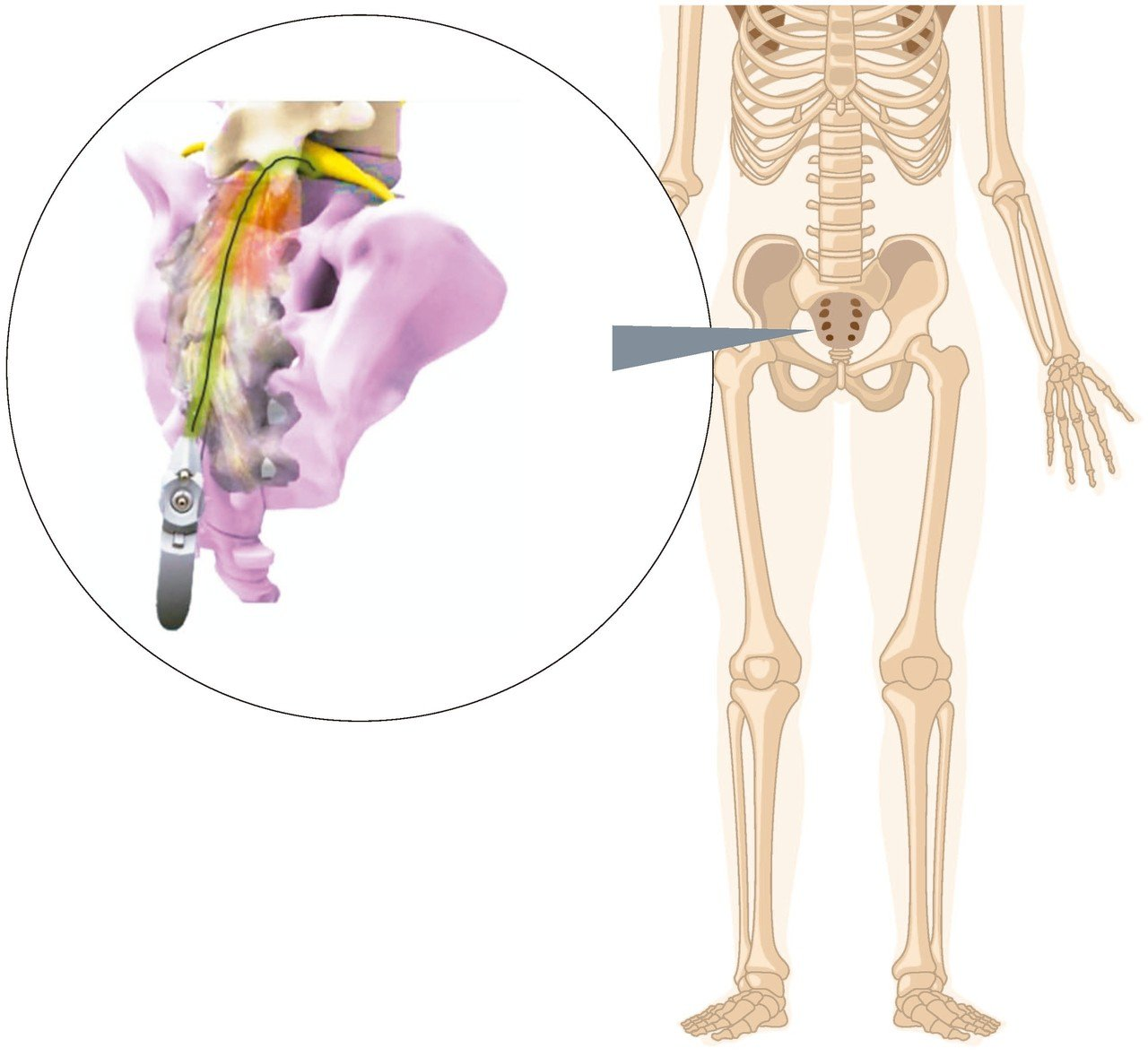「脊內導管」從尾椎孔將進入「硬脊膜上腔」中,可以注射藥物及分離沾黏組織。 圖/湯...
