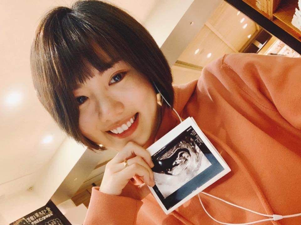 陽詠存po超音波照宣布懷孕。圖/摘自臉書