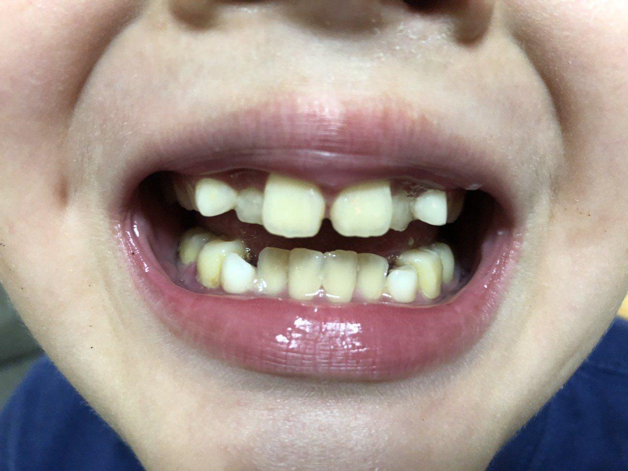 小朋友上顎窄使得牙齒排列不整、臉型「小下巴」等,是睡眠呼吸中止的高危險群。記者劉...