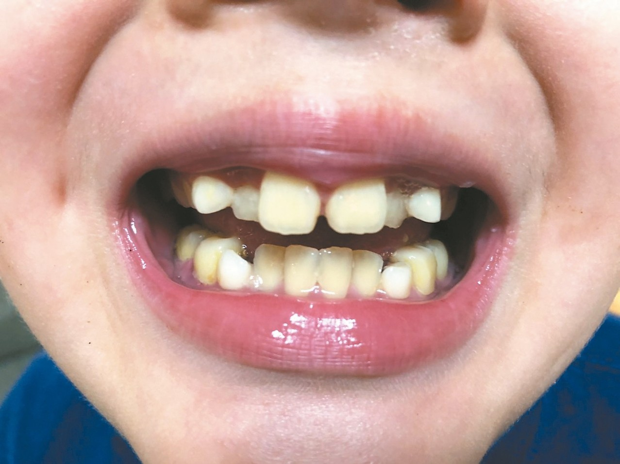 小朋友上顎過窄,使得牙齒排列不整、臉型「小下巴」等,是睡眠呼吸中止的高危險群。 ...