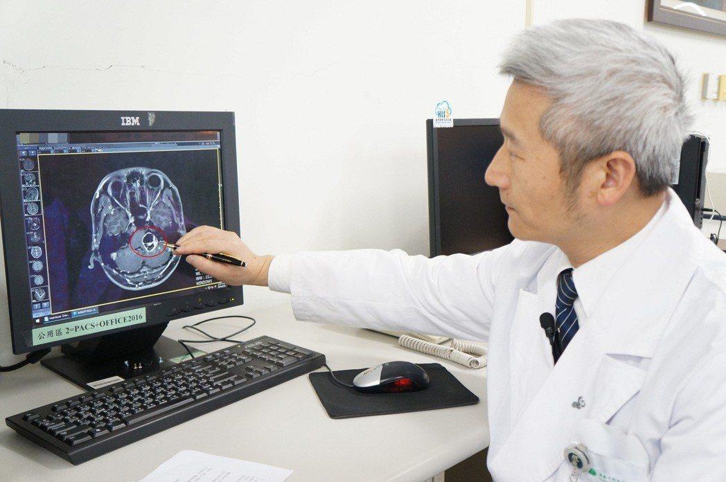 陳金城醫師手指處(紅圈)為病人腦內三公分大的聽神經瘤。圖/大林慈濟醫院提供