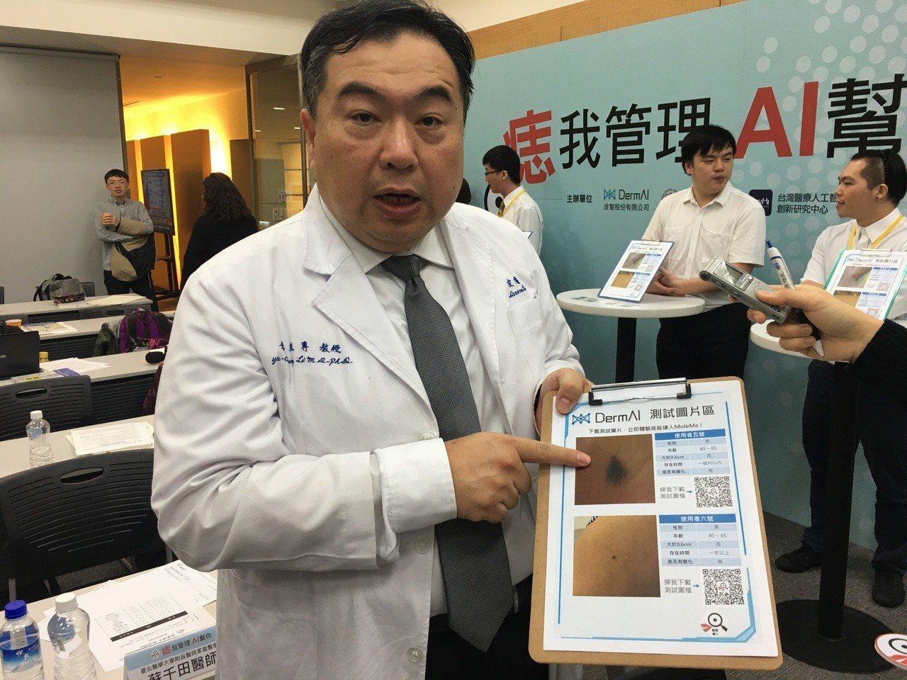 萬芳醫院皮膚科主任李友專說明黑色素瘤。 記者鄧桂芬/攝影