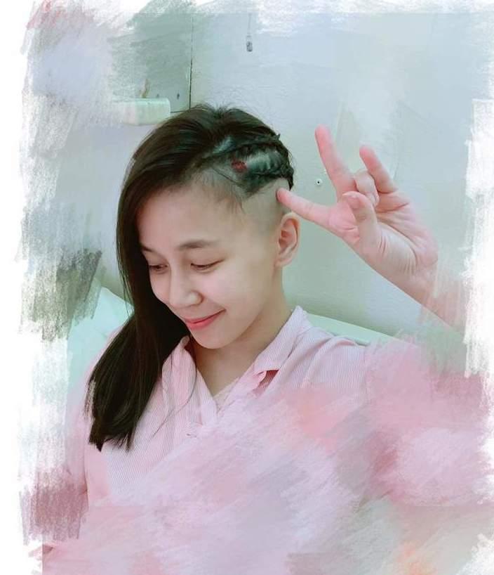 陳筱蕾去年11月剃髮動手術。圖/摘自臉書