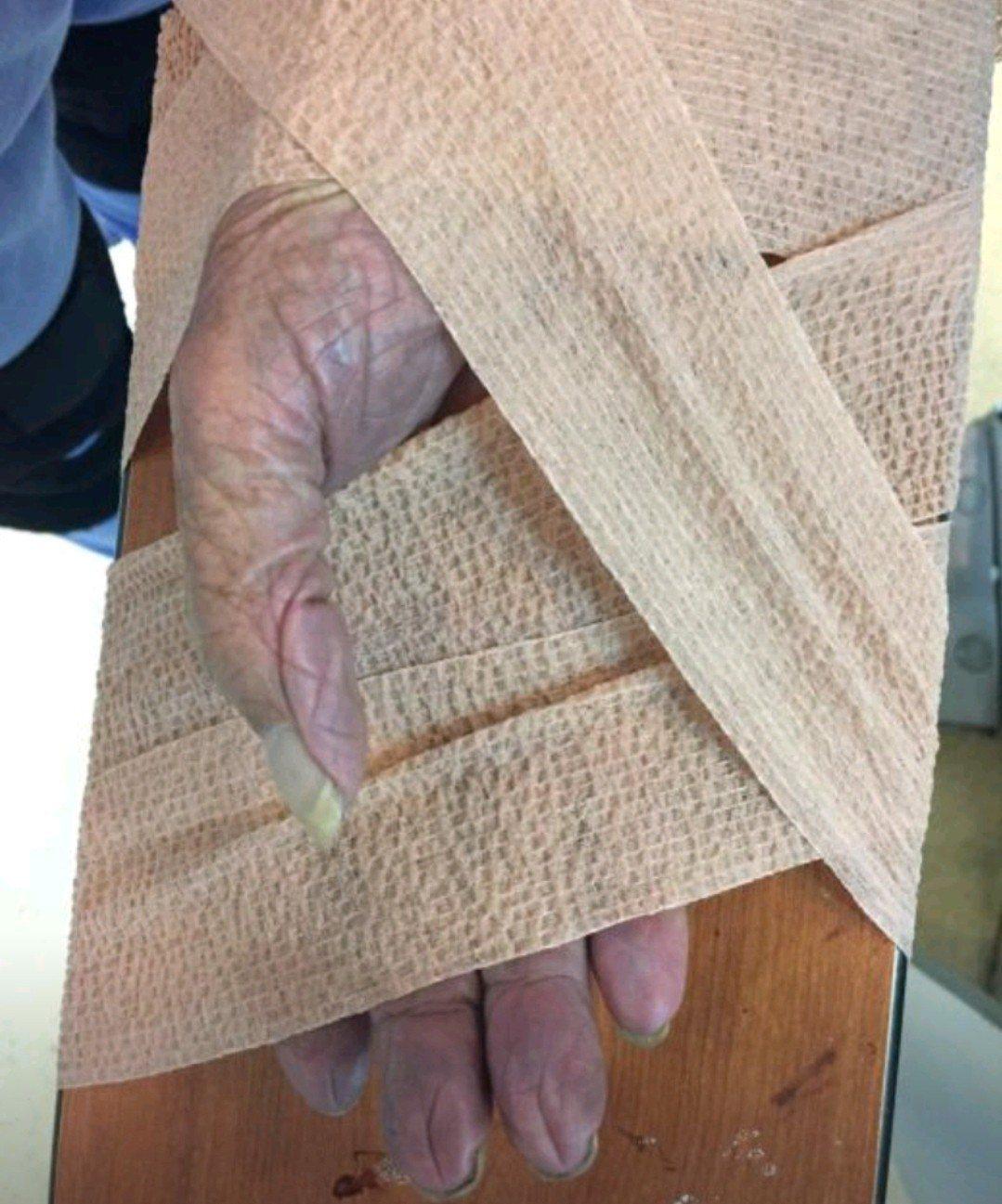 97歲老翁右手突然劇痛,慘白、發紫,原來是手中風。圖/奇美醫院提供