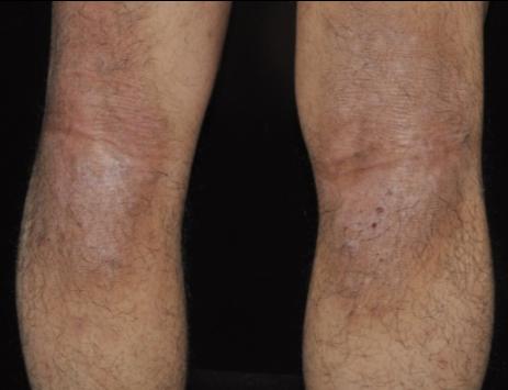 異位性皮膚炎好發在四肢屈側,常可見到患者搔抓的痕跡。台灣皮膚科醫學會提供