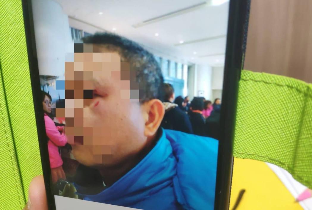 謝姓醫師遭毆傷,但他向航警報案卻被拒絕。記者李京昇/翻攝