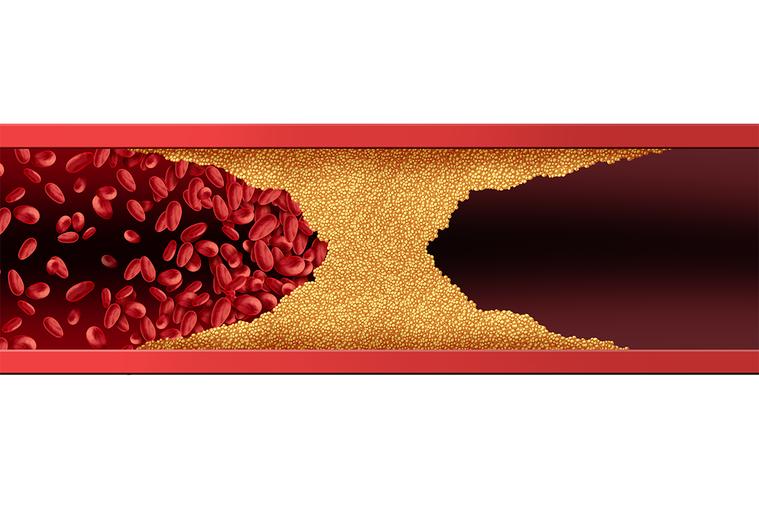 對於已阻塞的血管,有可能重新暢通嗎? 圖/ingimage