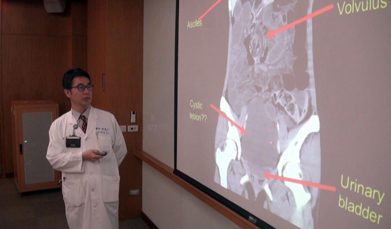義大醫院一般外科主任戴運生(見圖)表示,半夜腹痛的女大生,不只小腸扭轉成一團,腹...