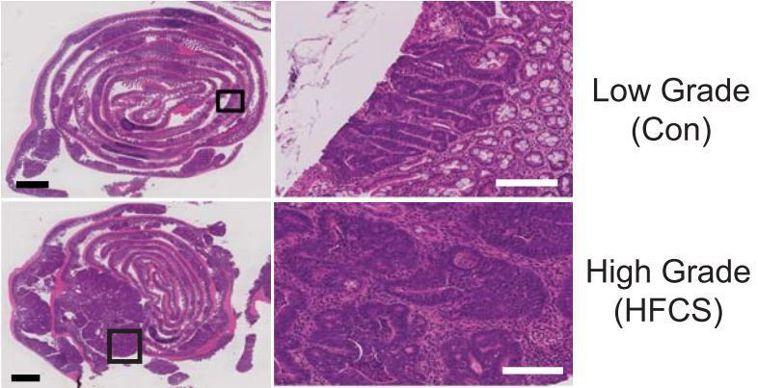 玉米糖漿促進了腫瘤的生長。