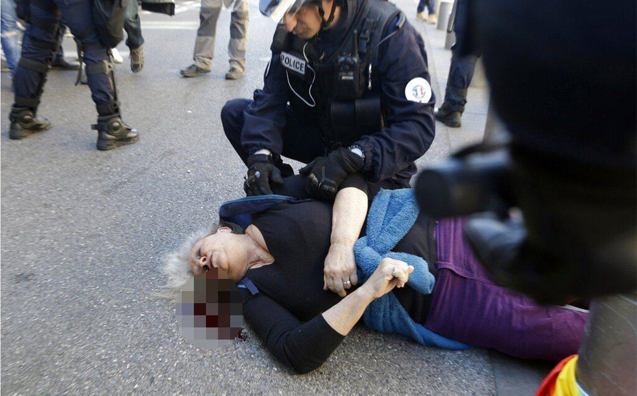 鎮暴警察23日在尼斯示威現場衝撞反政府抗議人士,勒蓋(見圖)受重傷頭骨碎裂。馬克...