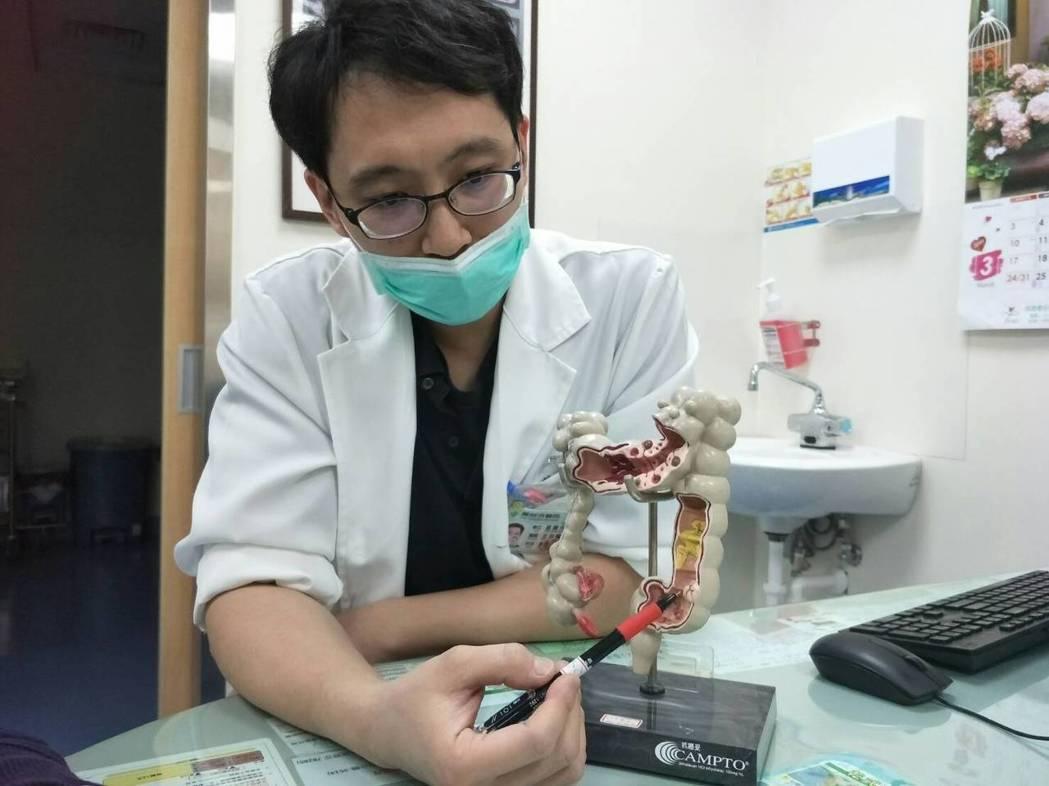 童醫院大腸直腸外科醫師黃宏哲說明,大腸腫瘤位置。圖/童醫院提供