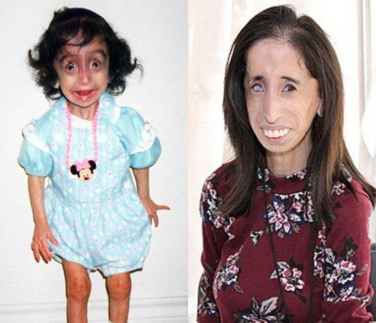 罕有罕見疾病的麗茲從小就被人投以異樣眼光,長大後還被貼上「世界最醜女人」的標籤。...