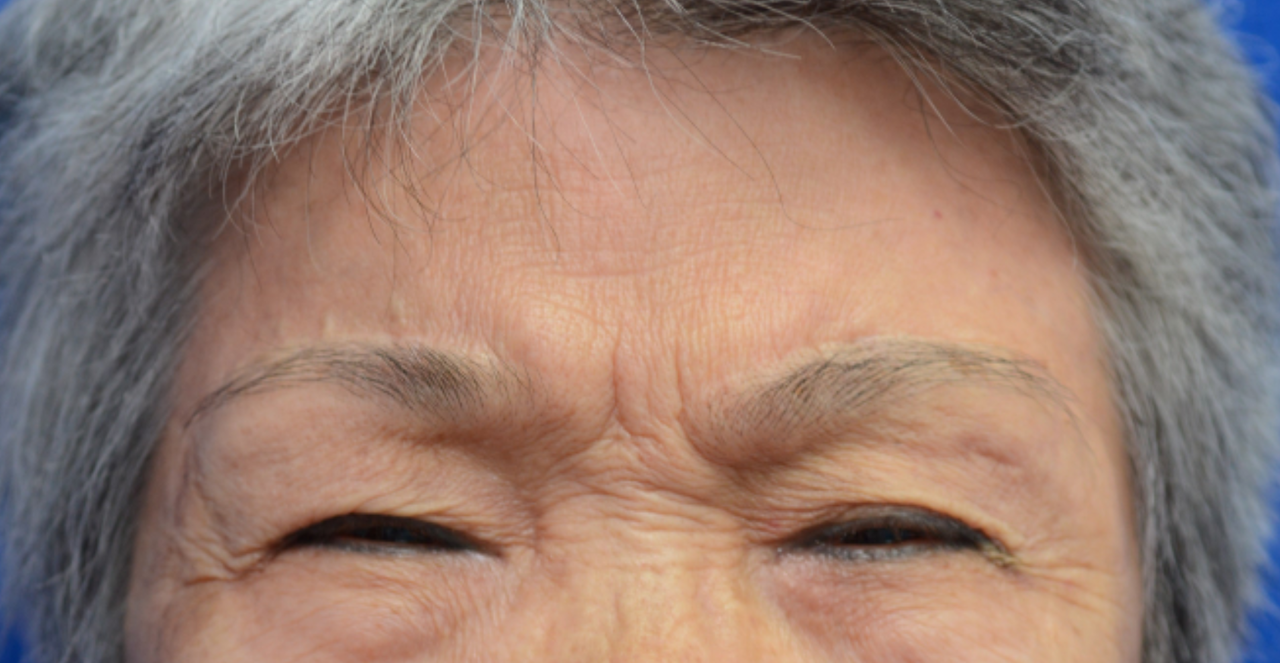 72歲黃女士因眼瞼痙孿眼皮下垂,撞牆、撞門是家常便飯,騎車還要以手撐開眼皮才能看...