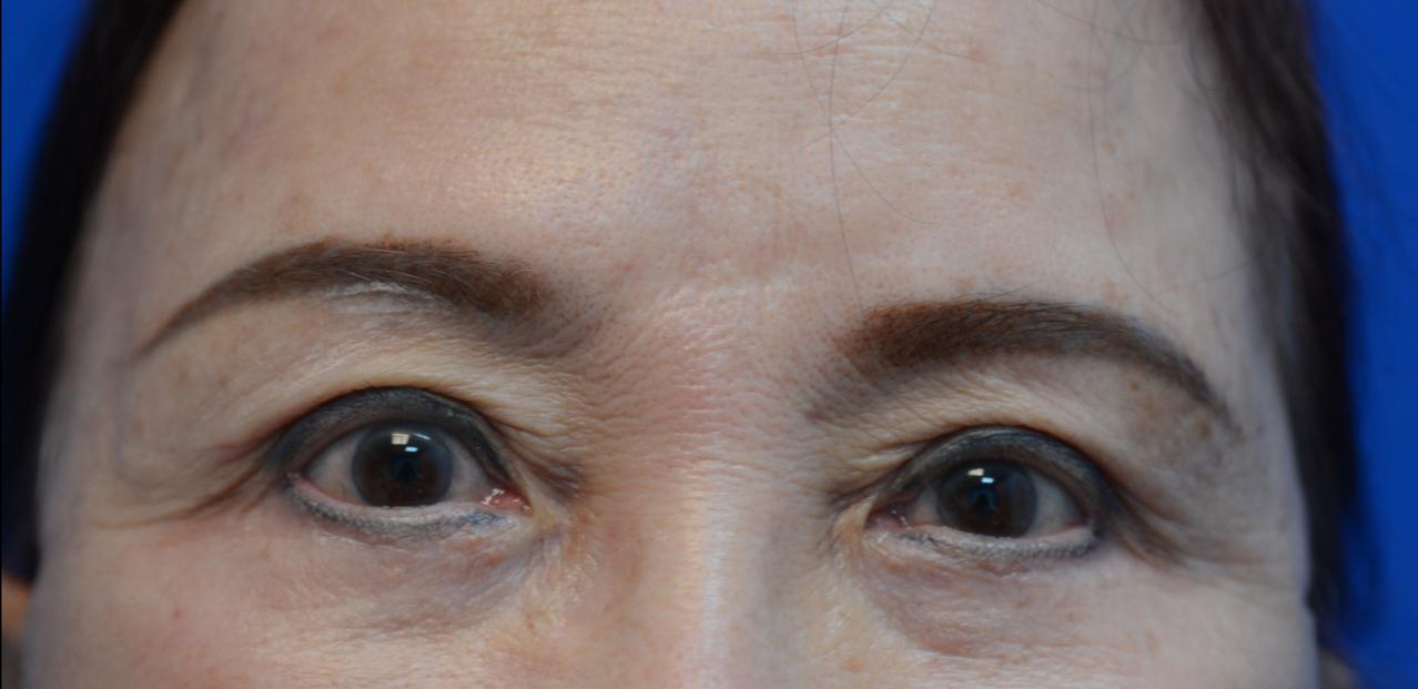 67歲黃小姐有40多年服裝設計經驗,本來因眼瞼嚴重下垂,成天貼著強力膠帶提眼,術...