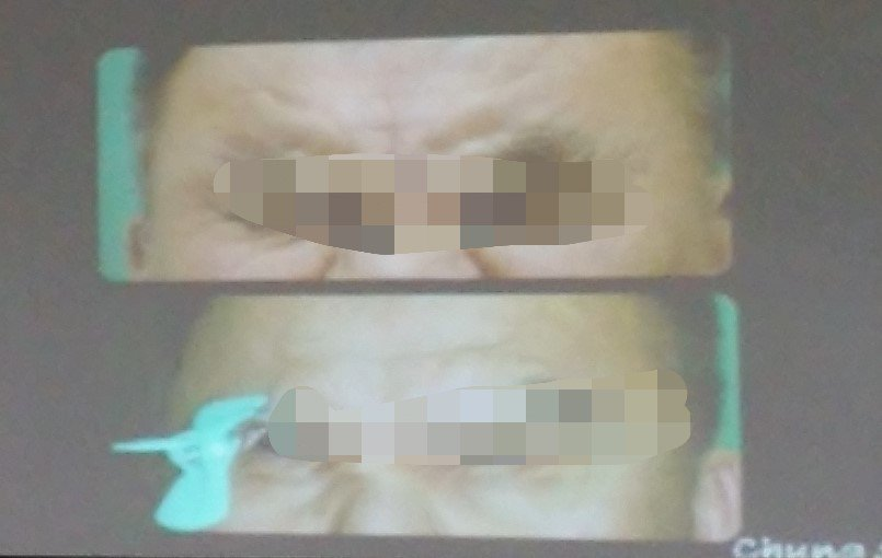 一名60幾歲警官因眼瞼痙孿,得隨身攜帶晒衣夾撐住眼皮,嚴重影響工作,只好提早退休...