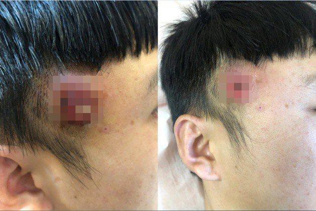 該貼文最近在Dcard網站引起熱烈討論,原PO表示,日前男友太陽穴長了一顆大痘痘...