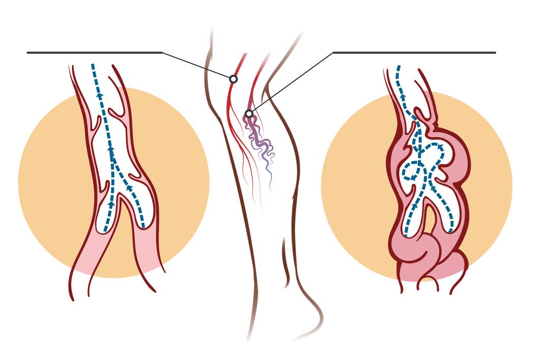 平時上班長期久坐、久站,導致腿部血液循環不好,使得血液推積在腿部靜脈導致靜脈壓力...