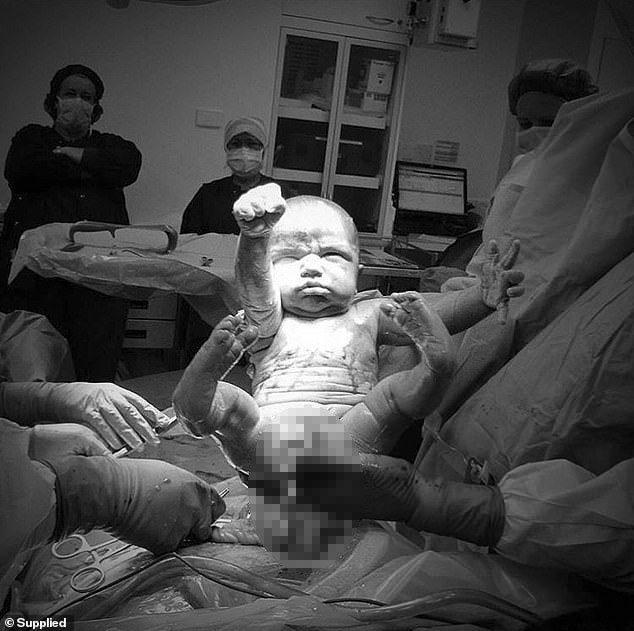 小嬰兒剛出生時,手就擺出「超人」POSE,讓手術室內的醫護人員都驚嘆,「誕生超級...