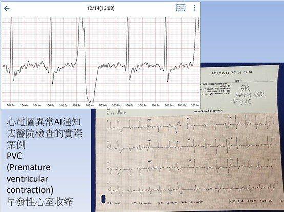 COMGO心血管AI量測儀在醫院臨床驗證預防醫學的成效,榮獲醫師們的肯定。 昌泰...