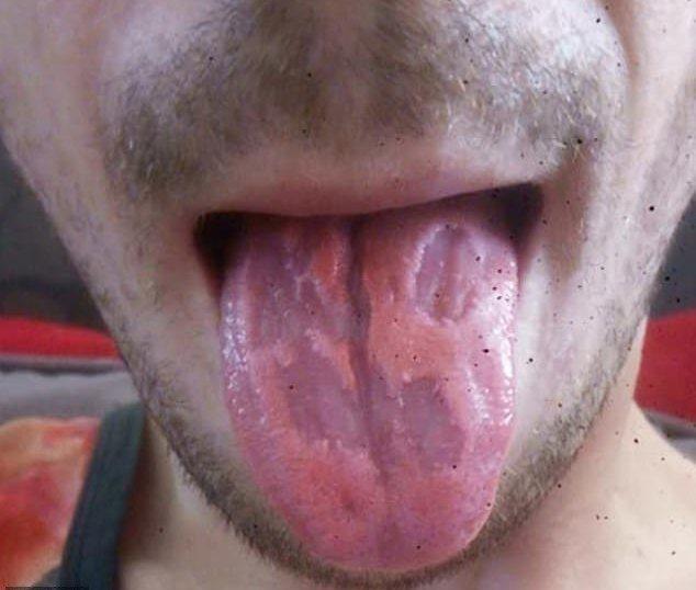 澳洲一位教師每天狂喝5至6瓶的能量飲料,導致他的舌頭遭嚴重腐蝕。圖擷自/《每日郵...