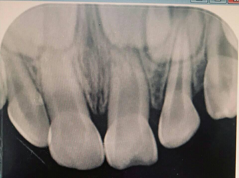 牙醫蔡政峰提醒,落牙植回時效掉落約半小時內,超過1小時的植回成功率降低許多。圖/...