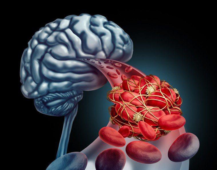 早晨若感覺手腳發麻、身體無法自由活動,可能是腦梗塞的前兆,這時請立即就醫。圖/i...