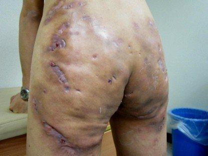 經過兩年治療,患者脫離坐立難安的生活。圖/高雄長庚醫院提供