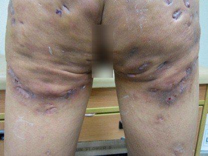 「化膿性大汗腺炎」是個毛囊發炎引起的疾病,患者臀部與大腿後側有許多腫塊、膿包。圖...