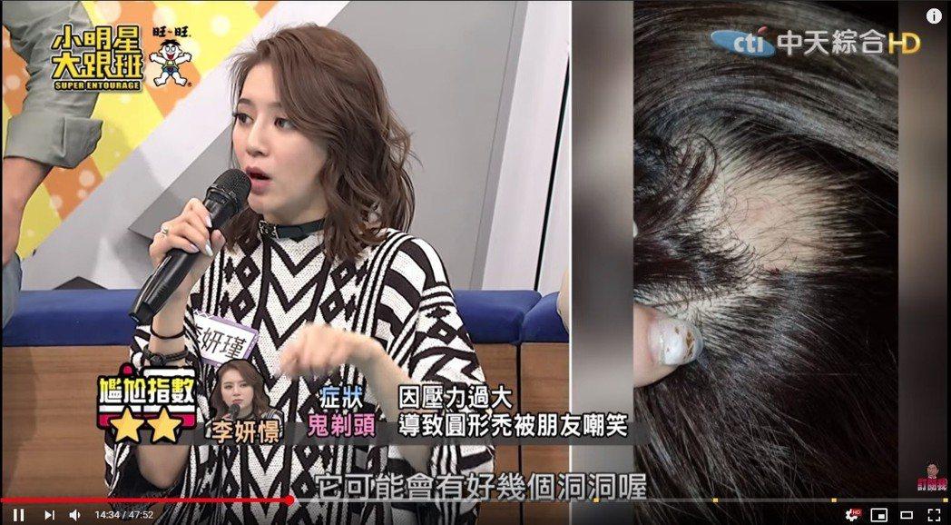 李妍憬上節目分享鬼剃頭就醫經驗,是壓力過大造成。圖/擷自《小明星大跟班》YOUT