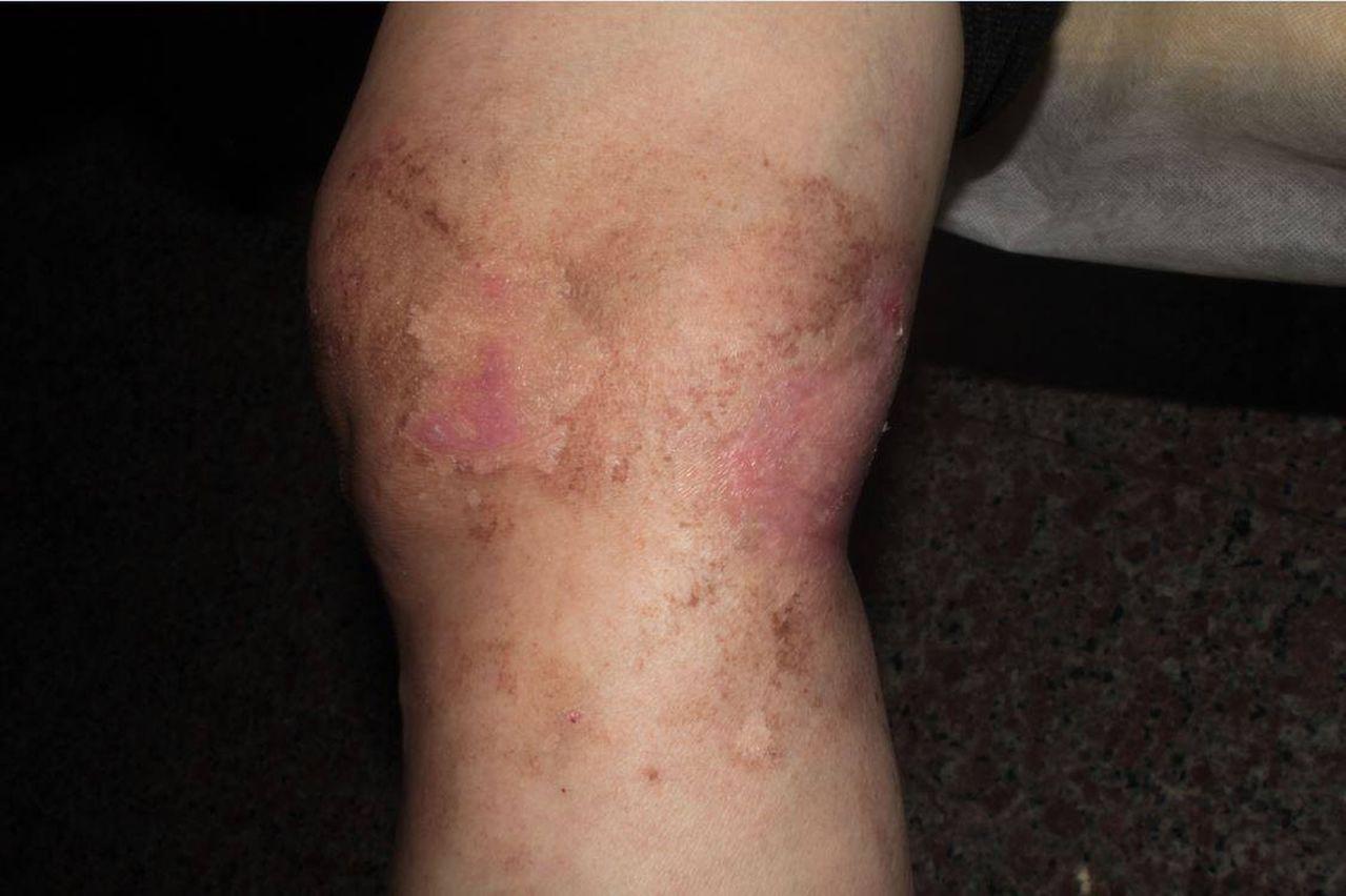 60歲婦人右膝誤信偏方以草藥「黑面馬」 外敷,造成傷口惡化,確診為化學性皮膚炎...