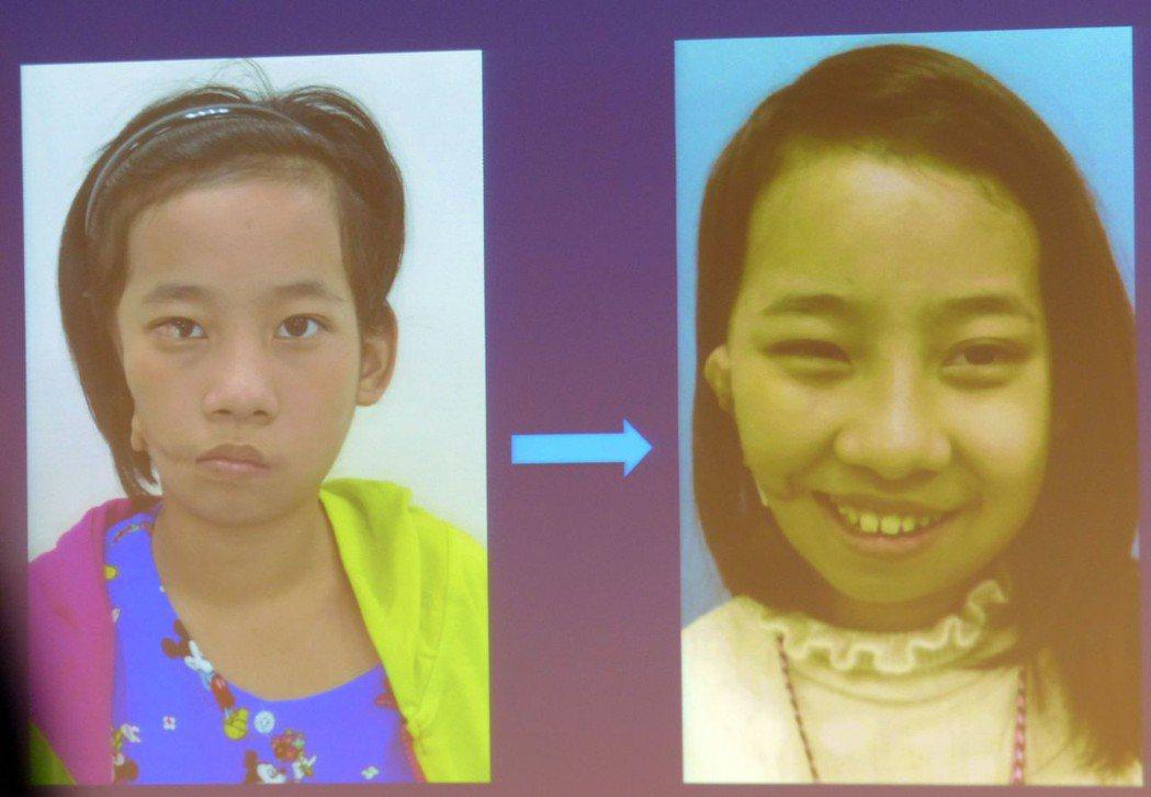 緬甸11歲女童「小勒」右臉畸形(左圖),右眼幾乎看不到、右耳聽力受損,來台接受7...
