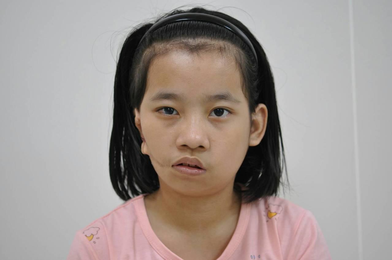 經獲中國附醫與民間企業的國際醫療援助下,小勒跨國來台接受治療,視力模糊、散光等問...