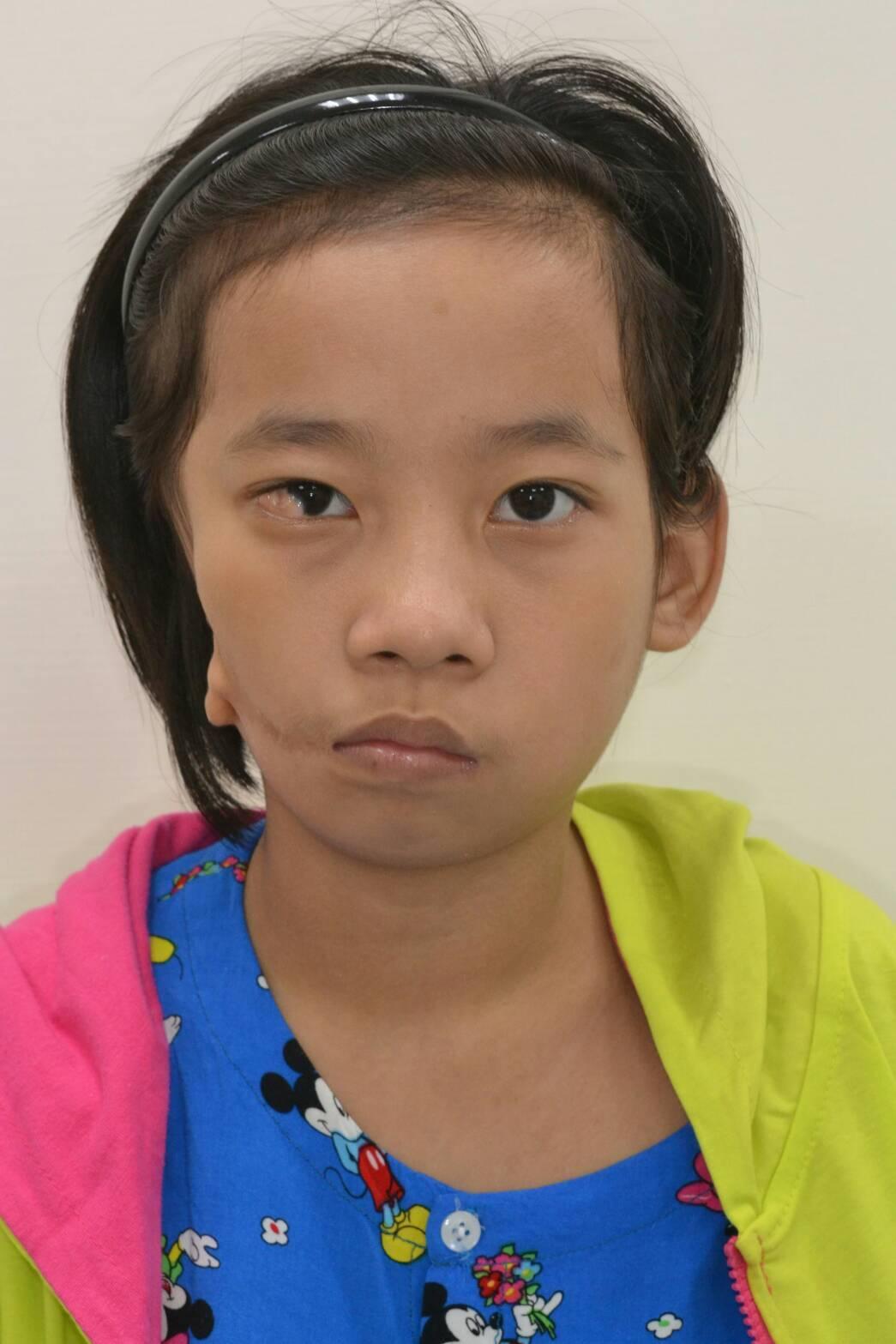 來自緬甸的12歲女童小勒,從小就因眼、耳、脊椎發育不全,出現眼睛斜視、耳朵畸型、...