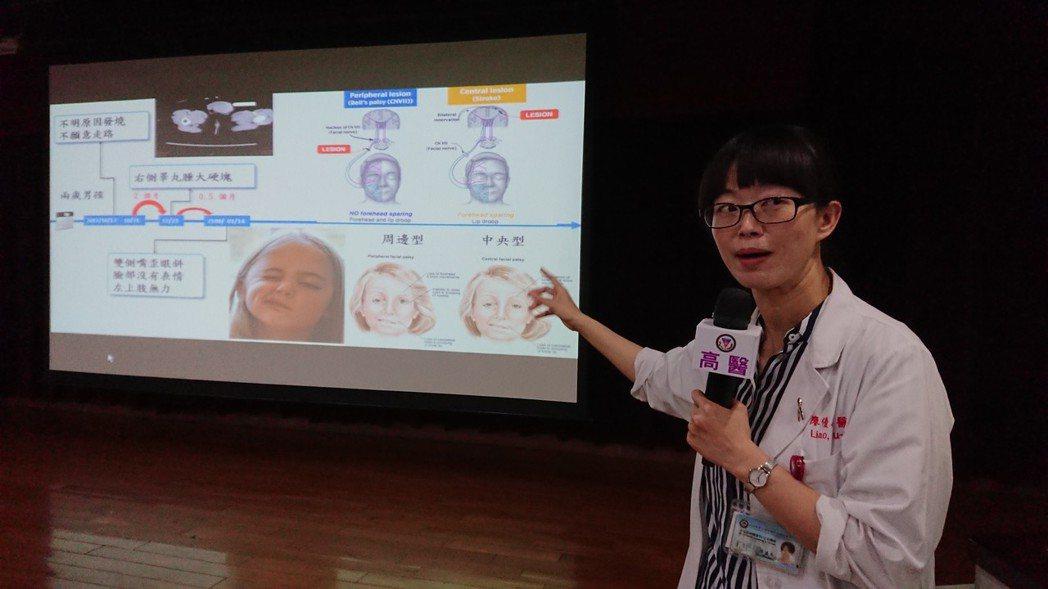 高醫小兒血液腫瘤科醫師廖優美表示,一般病毒感染導致的顏面神經麻痺多發生在臉部單側...