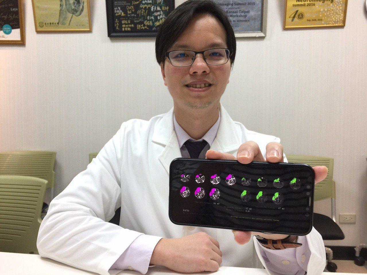 北醫附醫引進新型判讀軟體,能直接把腦缺血區域呈顯,幫助醫師判讀,加快患者推進手術...