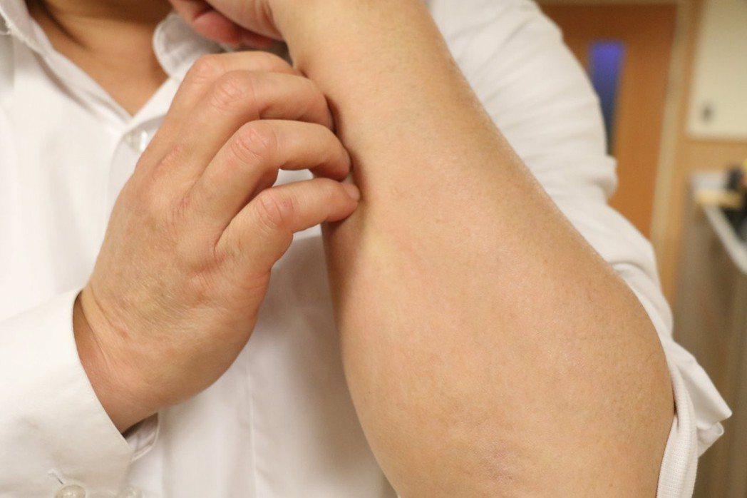 醫師提醒,皮膚癢不一定是皮膚病,也可能是肝臟出問題,慢性肝病病患發生全身性搔癢,...