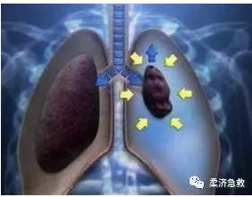 氣胸示意圖:胸腔氣體進入,肺被壓縮變小