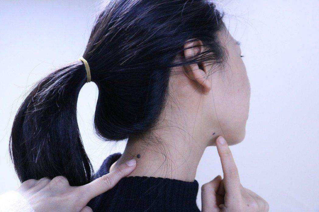 羅東博愛醫院表示,良性的痣通常對稱性佳、邊緣平滑、顏色均勻。圖/羅東博愛醫院提供
