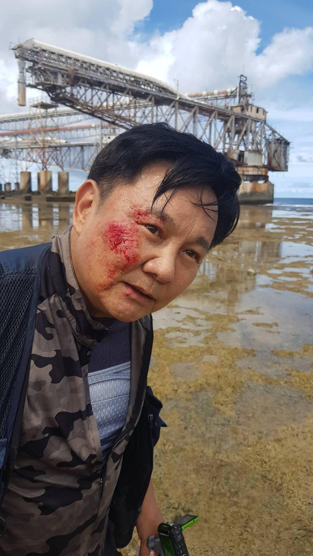眭澔平在諾魯滑倒受傷。 圖/擷自眭澔平臉書