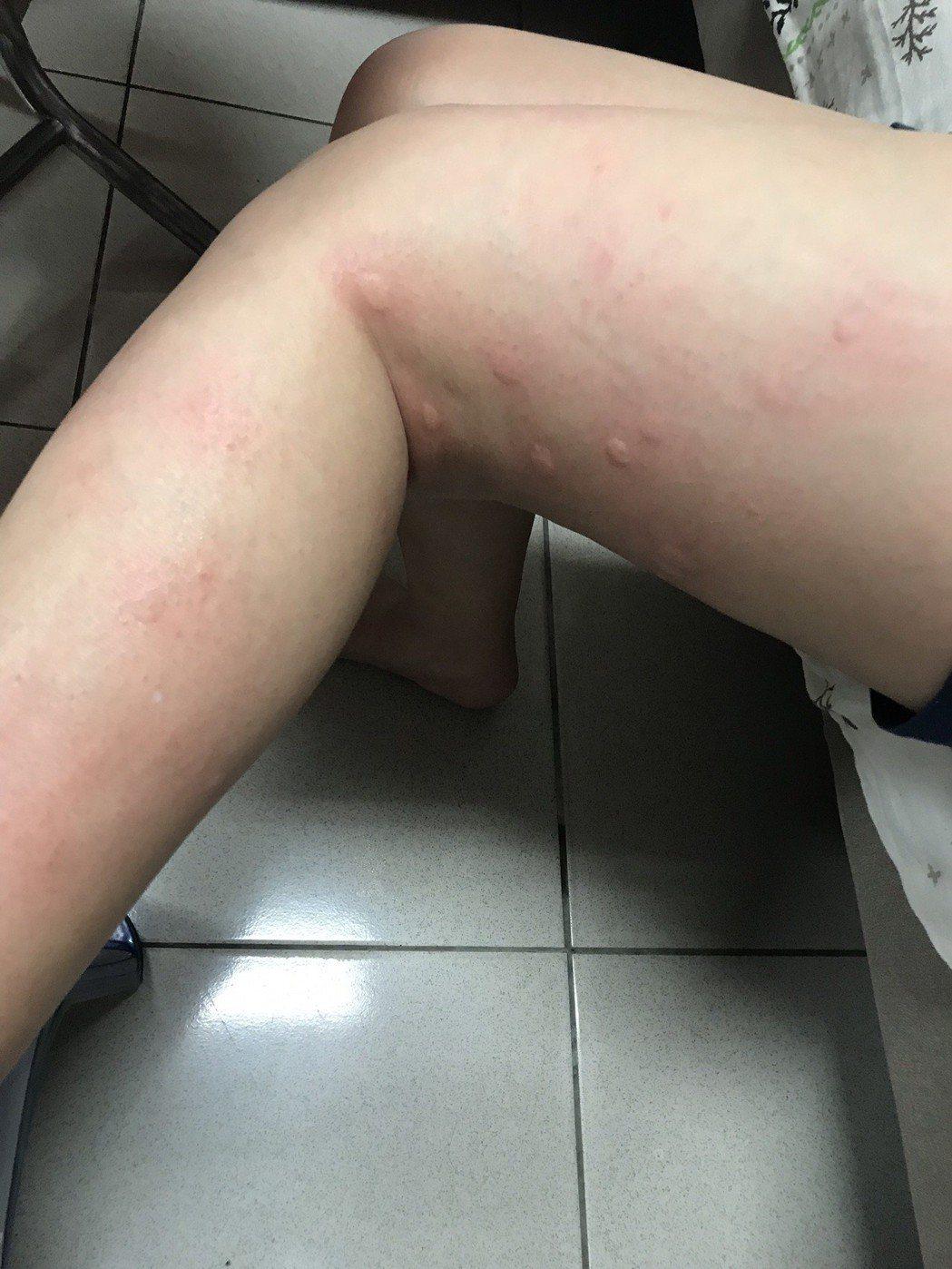 小腿、腳、手背等處都是小黑蚊最愛攻擊的目標,一被叮咬奇癢無比。記者王燕華/攝影