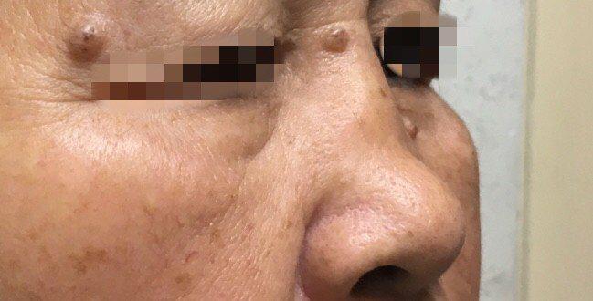 藍姓病患因為鼻中隔彎曲導致呼吸不順暢。圖/醫院提供