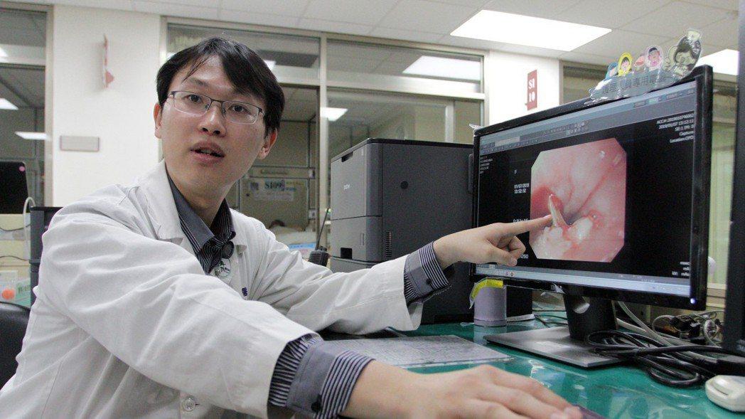 門諾醫院心臟外科醫師黃振銘表示,民眾若忽視魚刺哽在喉嚨,恐食道穿孔,引發縱膈腔炎...