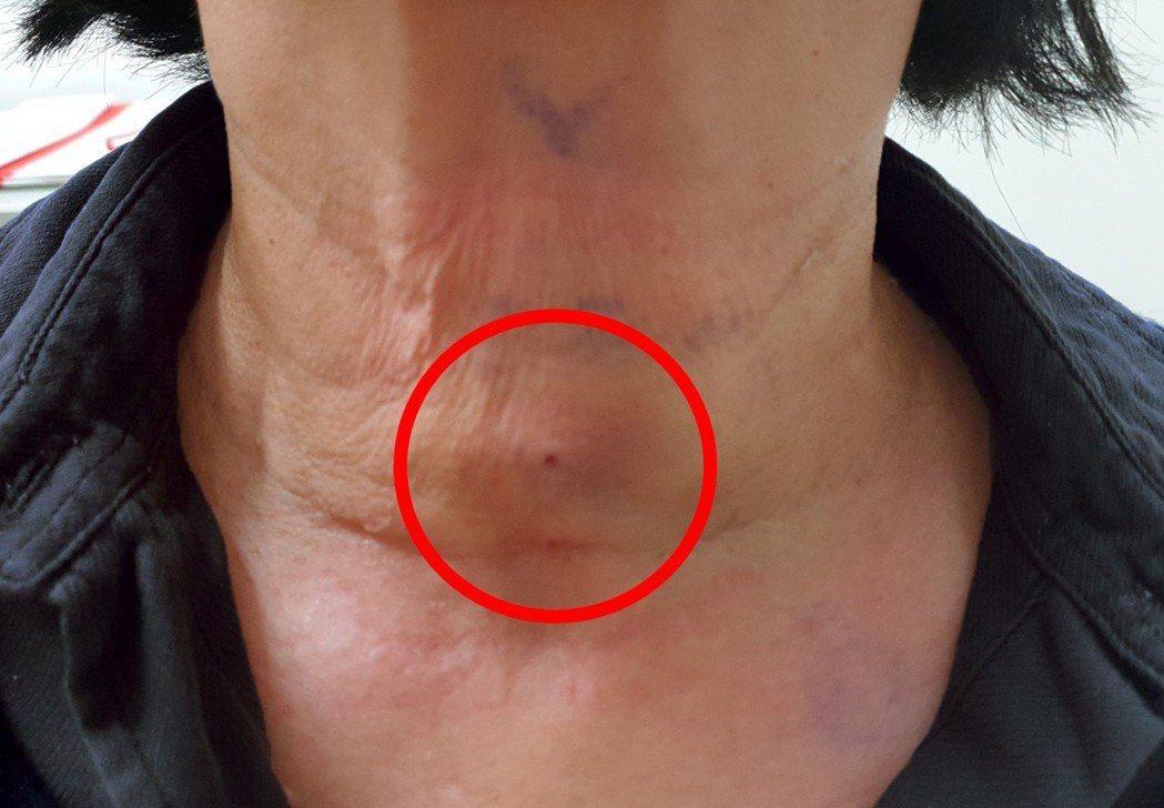 女子到醫院治療甲狀腺腫瘤,治療後脖子留下針扎痕跡。圖/光田綜合醫院提供