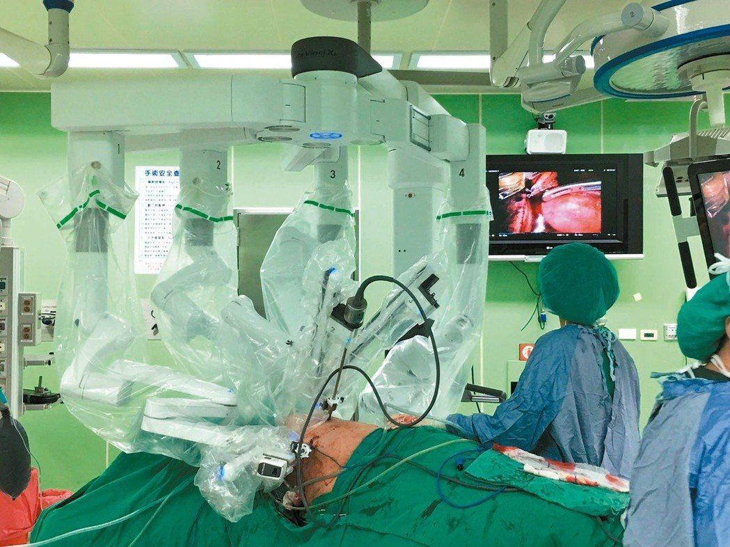 4隻機械手臂懸吊而下,透過醫師在控制台操作,替病人動刀。圖/聯合報系資料照片