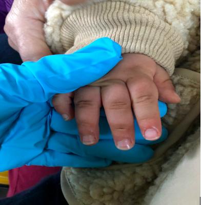 新竹縣竹北市一名2歲幼童推拉鋁門窗夾傷脫困後,遭夾傷三根手指腫脹情形。圖/消防局...